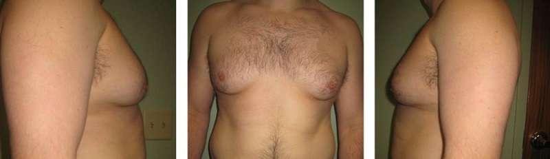 Gynecomastia treatments