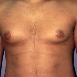 Gynecomastia symptoms